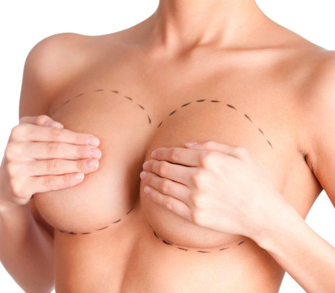 Fordeler ved å gjennomføre en brystreduksjon
